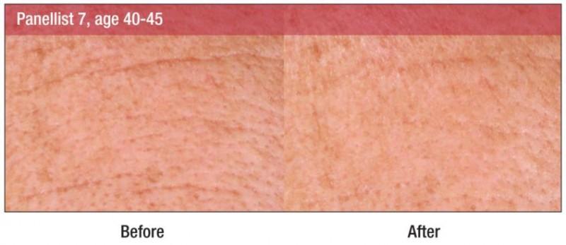 Croda lança ativo que promete suavizar a pele instantaneamente